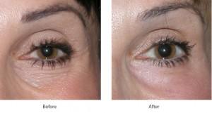 Laser Skin Care 02
